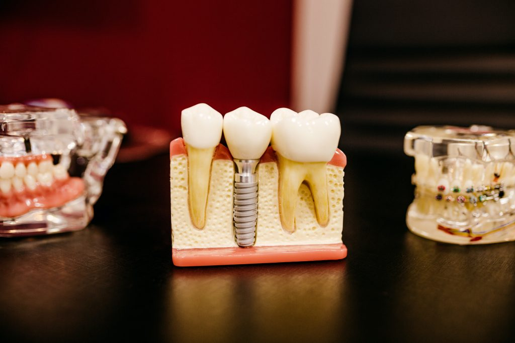 Importance of Dental Care for a Positive Lifestyle & Wellness