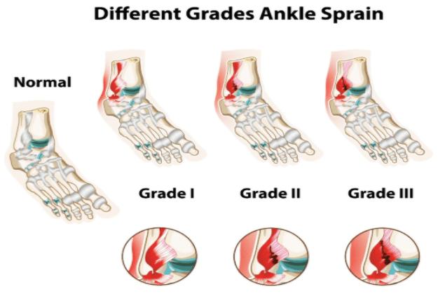 Grading of Ankle Sprain:
