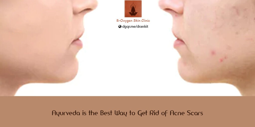 Ayurveda is the Best Way to Get Rid of Acne Scars
