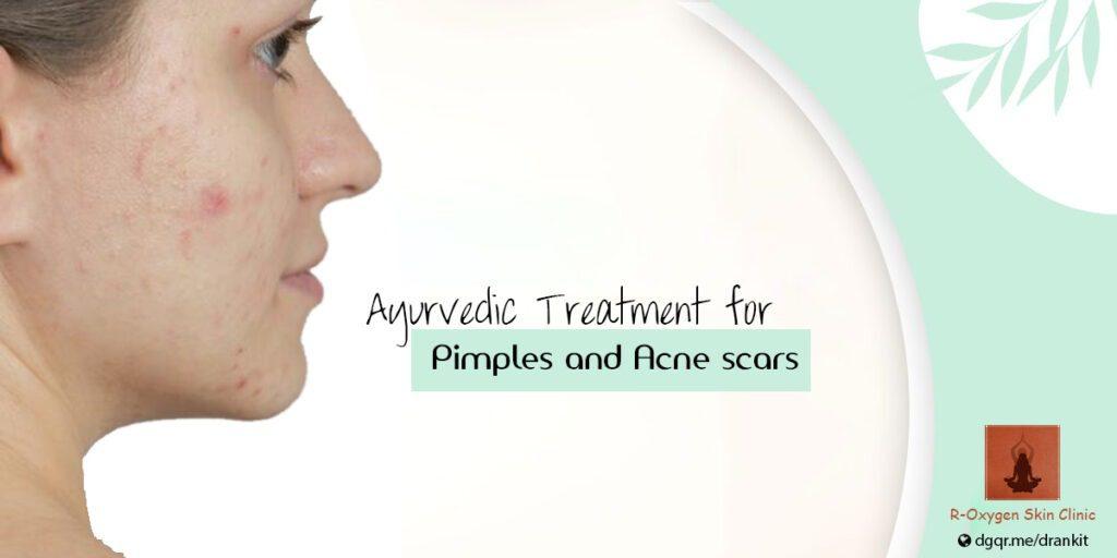 The Secret to Ayurvedic Treatment