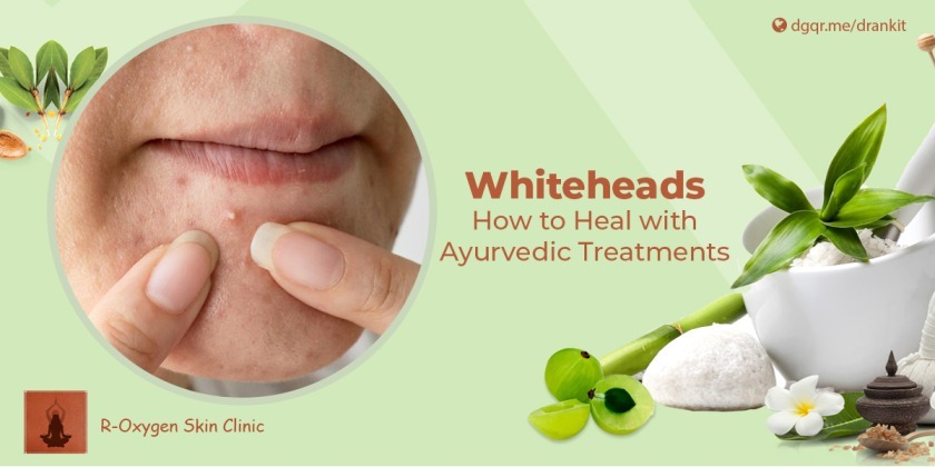 Whiteheads, skin care, skin treatment, Dr. Ankit Pandey, how to get rid of whiteheads, Whiteheads ayurvedic treatment, acne, acne ayurvedic treatment, ayurvedic treatment for pimples, cause of acne, Ayurvedic acne treatment, ayurvedic medicine for pimples and marks, ayurveda acne face map, Whiteheads ayurvedic treatment, Whiteheads: How to heal with ayurvedic treatment